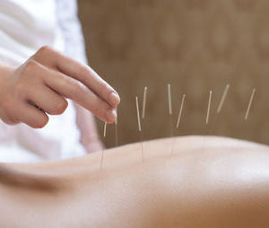 3 Safety Lessons Anatomy Acupuncture