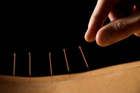 Acupuncture ceu online