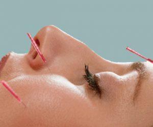 acupuncture ceus online dermatology