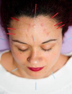 Acupuncture Acne