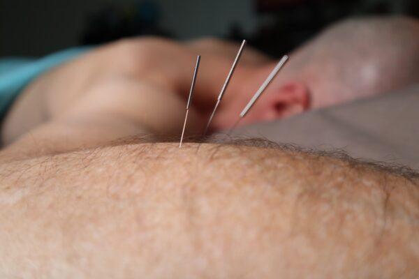 Acupuncture CEUs Japanese acupuncture