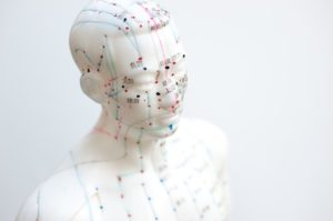 """""""#1 Guide"""" - Acupuncture for Bi Syndrome in the Meridians"""