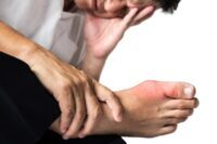 """""""*Acupuncture for Gout*"""" - What You Must Know"""